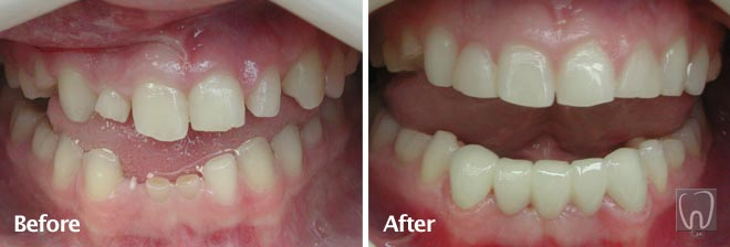 All Ceramic Bridge by Black & Black Dental, Willow Street Lancaster PA Pennsylvania dentist
