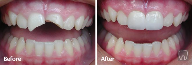 All Porcelain Crowns by Black & Black Dental, Willow Street Lancaster PA Pennsylvania dentist