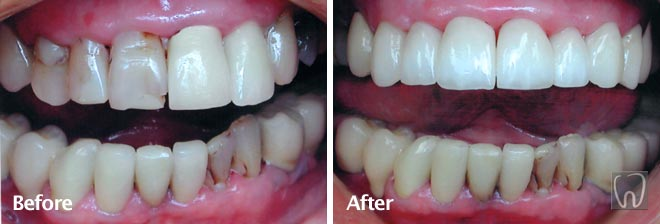 Anterior Porcelain Crowns by Black & Black Dental, Willow Street Lancaster PA Pennsylvania dentist