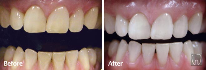 Bleaching Whitening by Black & Black Dental, Willow Street Lancaster PA Pennsylvania dentist