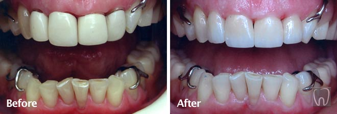 Tooth Whitening and Front Crowns by Black & Black Dental, Willow Street Lancaster PA Pennsylvania dentist